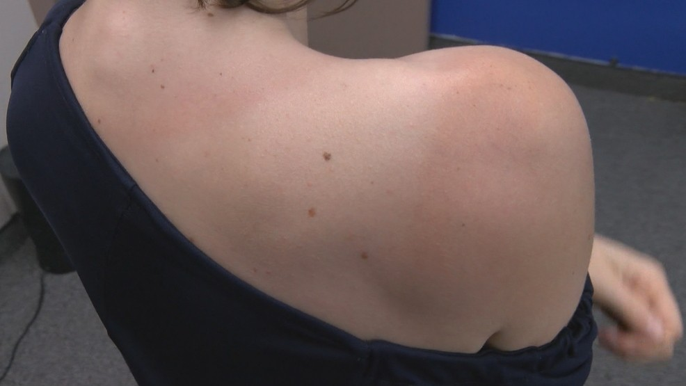 Everyone Is At Risk For Developing Skin Cancer Wkrc