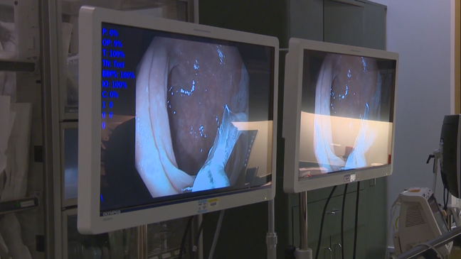 Delays In Colon Cancer Screenings Putting Off Care Will Cost Lives Long After Pandemic Wkrc