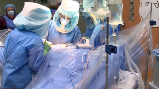 surgery for chiari malformation